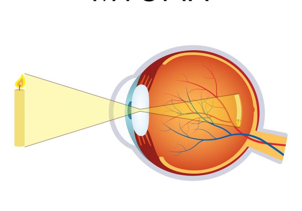 Laser miopia Milano